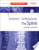 Arthritis and Arthroplasty Book