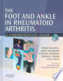 The Foot And Ankle In Rheumatoid Arthritis Book PDF