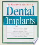 A Patient s Guide to Dental Implants