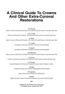 A Clinical Guide to Crowns and Other Extra coronal Restorations