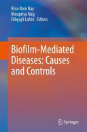 Biofilm Mediated Diseases  Causes and Controls