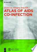Atlas of AIDS Co infection