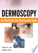 Dermoscopy  An Illustrated Self Assessment Guide