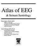 Atlas of EEG   Seizure Semiology