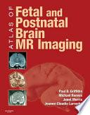 Atlas of Fetal and Postnatal Brain MR