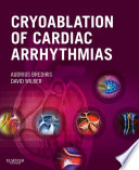Cryoablation of Cardiac Arrhythmias E Book