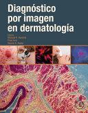 Diagn  stico Por Imagen En Dermatolog  a