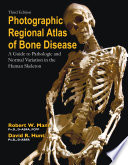 Photographic Regional Atlas Of Bone Disease Book PDF