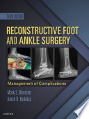 Reconstructive Foot And Ankle Surgery Management Of Complications E Book
