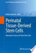 Perinatal Tissue Derived Stem Cells