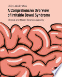 A Comprehensive Overview of Irritable Bowel Syndrome
