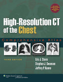 High Resolution CT of the Chest