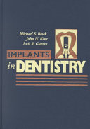 Implants in Dentistry