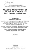 Killey s Fractures of the Middle Third of the Facial Skeleton