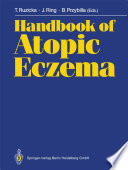 """Handbook of Atopic Eczema"" by Thomas Ruzicka, Johannes Ring, Bernhard Przybilla"