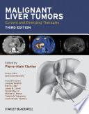 Malignant Liver Tumors