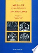 Mri And Ct Atlas Of Correlative Imaging In Otolaryngology Book PDF