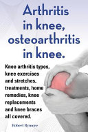 Arthritis in Knee  Osteoarthritis in Knee  Knee Arthritis Types  Knee Exercises and Stretches  Treatments  Home Remedies  Knee Replacements and Knee B