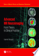 Advanced MR Neuroimaging