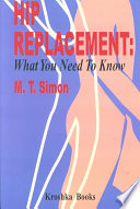 Hip Replacements Book PDF