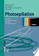 Photoepilation