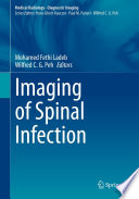 Imaging of Spinal Infection Book