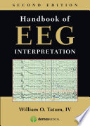 Handbook of EEG Interpretation  Second Edition