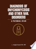 Diagnosis of Onychomycosis and Other Nail Disorders