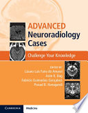 Advanced Neuroradiology Cases Book
