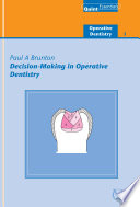 Decision Making in Operative Dentistry