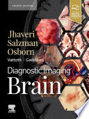 Diagnostic Imaging  Brain E Book