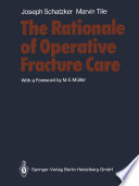 The Rationale of Operative Fracture Care
