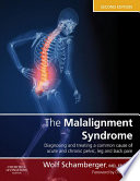 The Malalignment Syndrome E Book