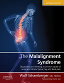 The Malalignment Syndrome E Book