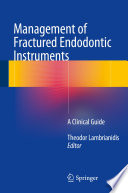 Management of Fractured Endodontic Instruments Book