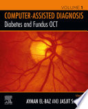 Diabetes and Fundus OCT