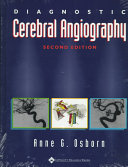 Diagnostic Cerebral Angiography