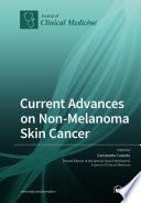 Current Advances on Non Melanoma Skin Cancer Book