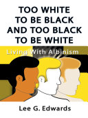 Too White to be Black and too Black to be White: Living with Albinism