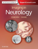 Imaging in Neurology E-Book