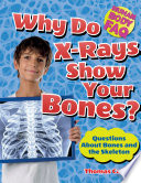 Why Do X-Rays Show Your Bones?