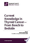 Current Knowledge in Thyroid Cancer   From Bench to Bedside