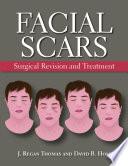Facial Scars Book