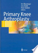 Primary Knee Arthroplasty Book PDF