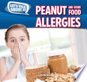 Peanut and Other Food Allergies Book