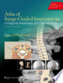 Atlas of Image Guided Intervention in Regional Anesthesia and Pain Medicine