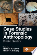 Case Studies in Forensic Anthropology Book