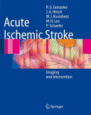 Acute Ischemic Stroke [Pdf/ePub] eBook