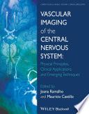 Vascular Imaging Of The Central Nervous System Book PDF