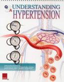 Understanding Hypertension Book PDF